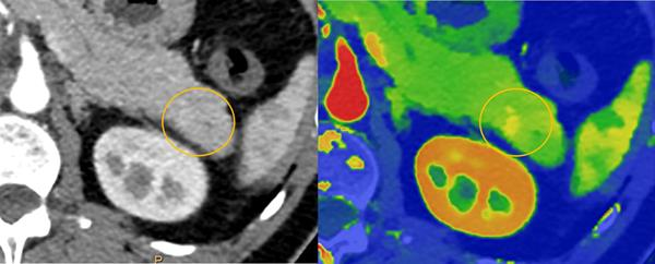 Spectral CT 7500 Pancreatic Lesion Comparison
