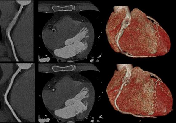 Spectral CT 7500 Motion in Right Coronary Artery Comparison