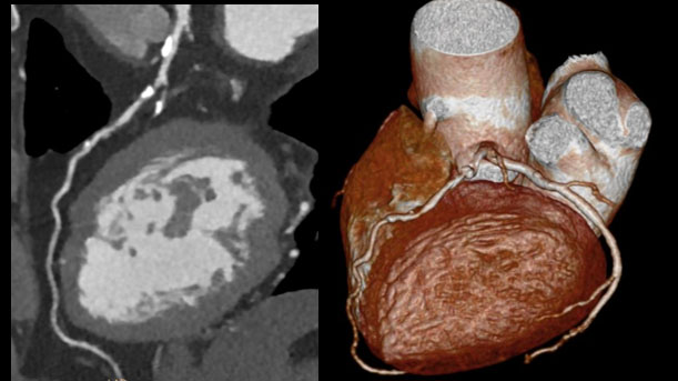 Precise Suite Incisive cardiac