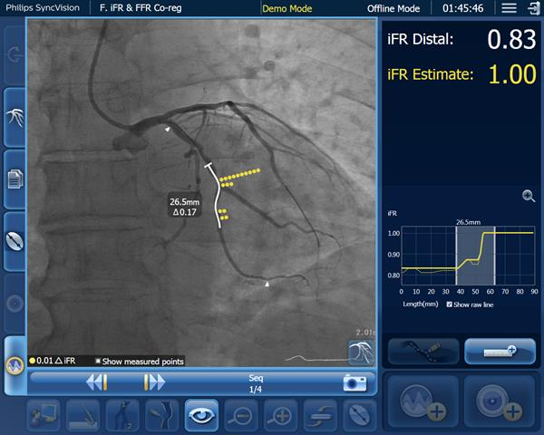 iFR data co-registered on the angiogram